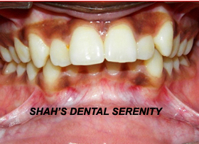 Dental Implants in Mumbai