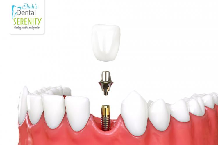 10 Tips About DENTAL IMPLANTS You Can't Afford To Miss